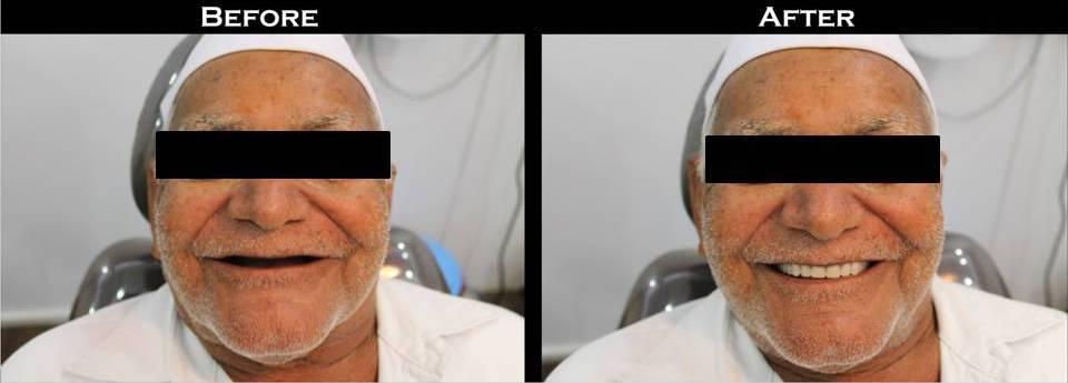 Complete-Denture-Patient