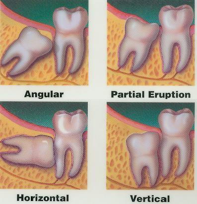 Oral-and-Maxillofacial-Surgeries