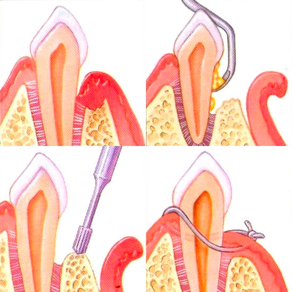 services-periodontal-flap-surgery